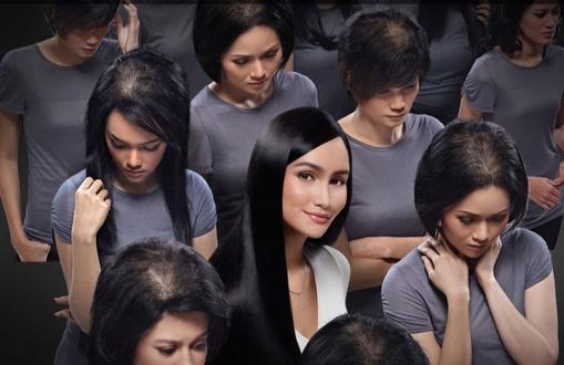 cara mencegah kebotakan rambut